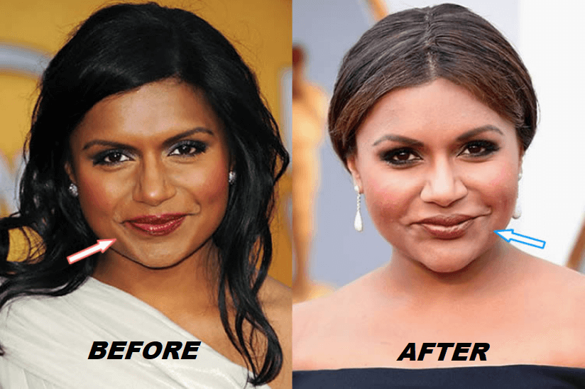 Mindy Kaling Plastic Surgery Before and After - Transformation