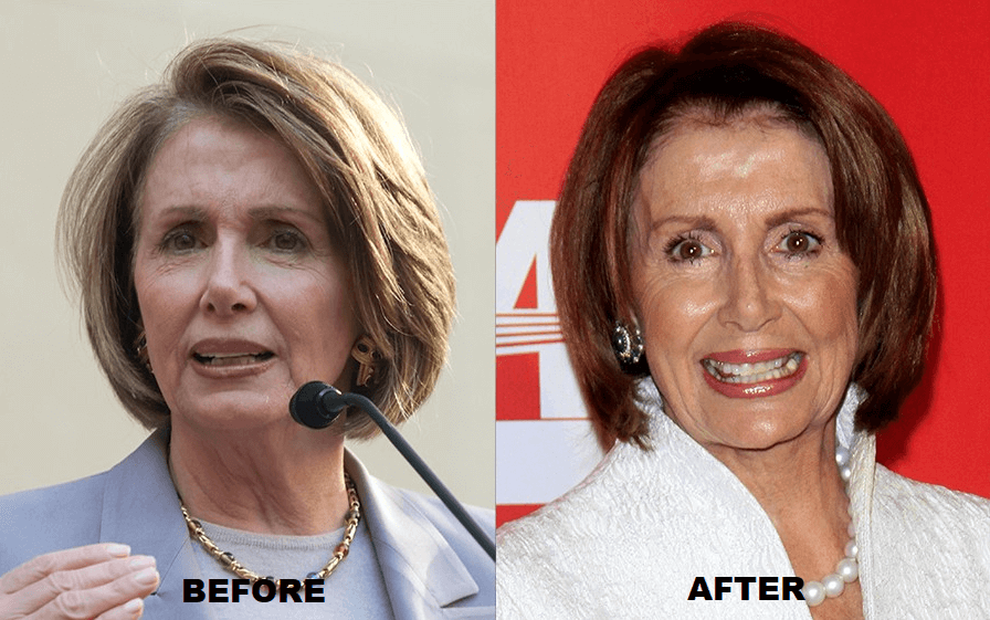 Nancy Pelosi Plastic Surgery Before and After - The Truth