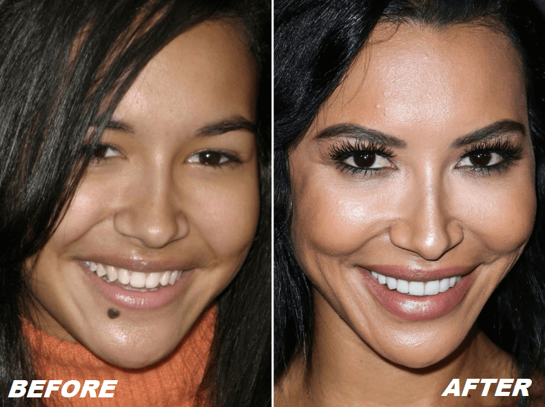 Naya Rivera Plastic Surgery Before After - The Truth