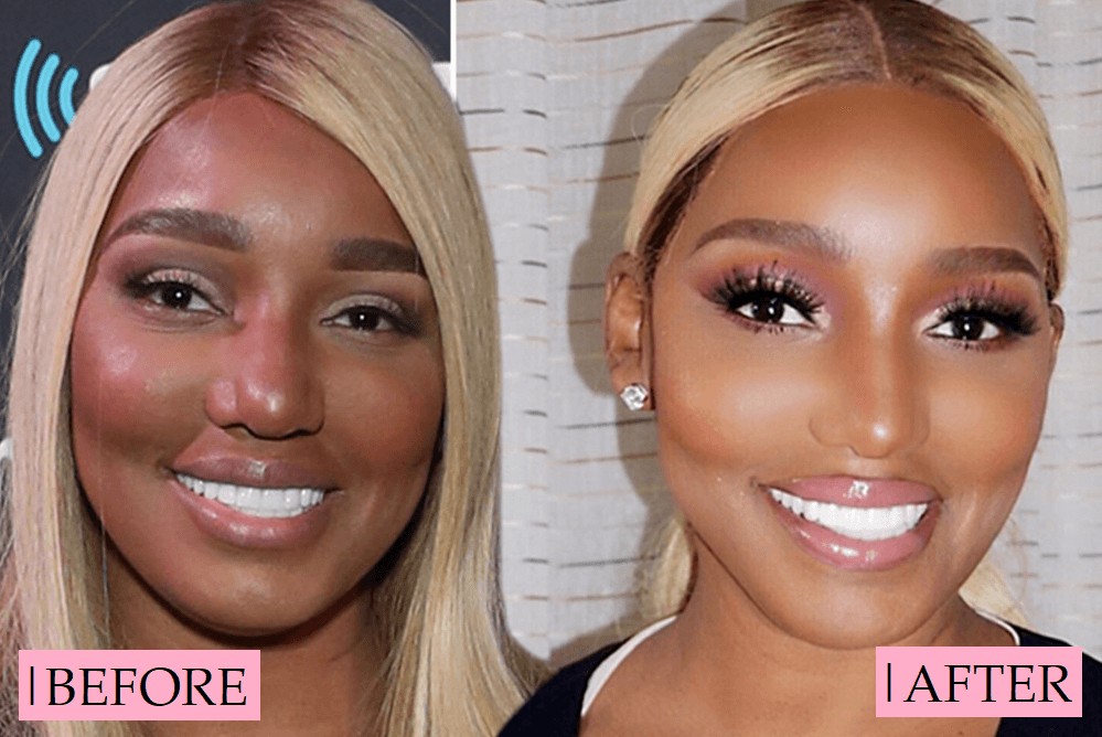 Nene Leakes Plastic Surgery Transformation: Before After