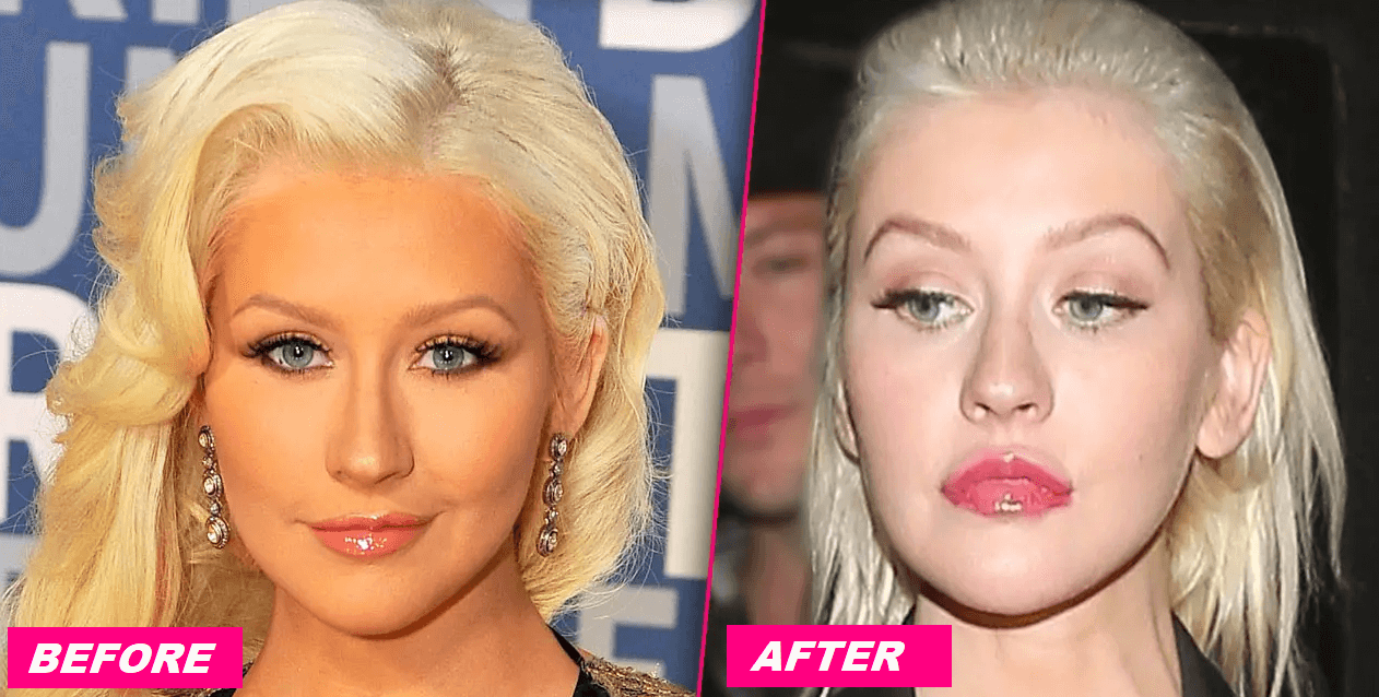 Noticeable Changes in Christina Aguilera Face