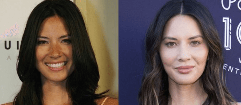 Olivia Munn Surgery Before After Pictures