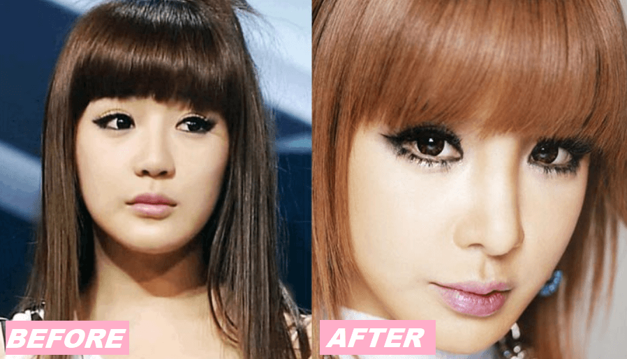 Park Bom Plastic Surgery Before and After - The Truth