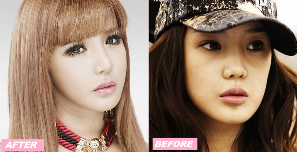 Park Bom and the rumors of Plastic Surgery