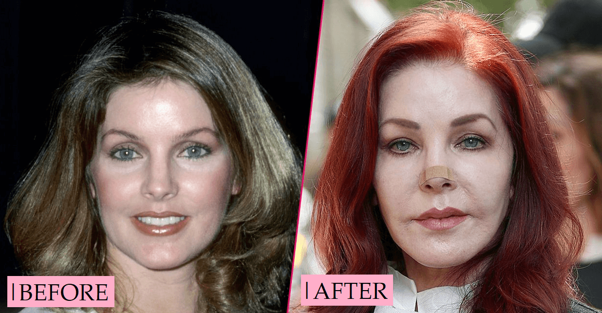 Priscilla Presley Plastic Surgery Before and After Transformation