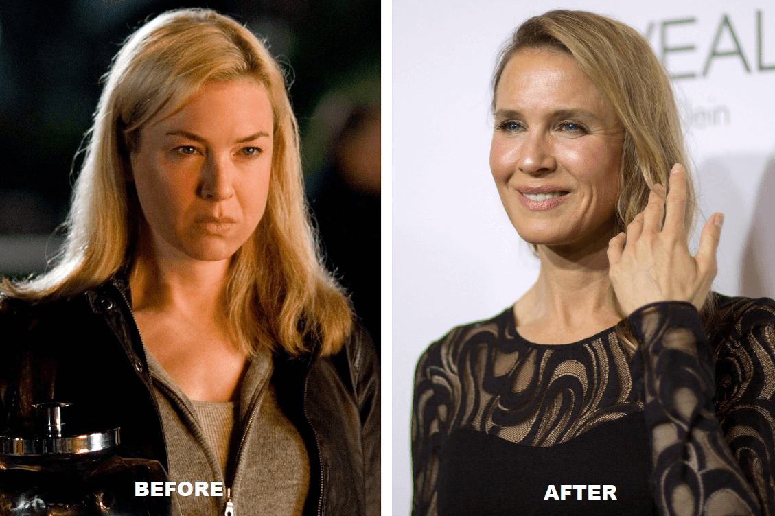 Renée Zellweger Plastic surgery Before and After - The Truth