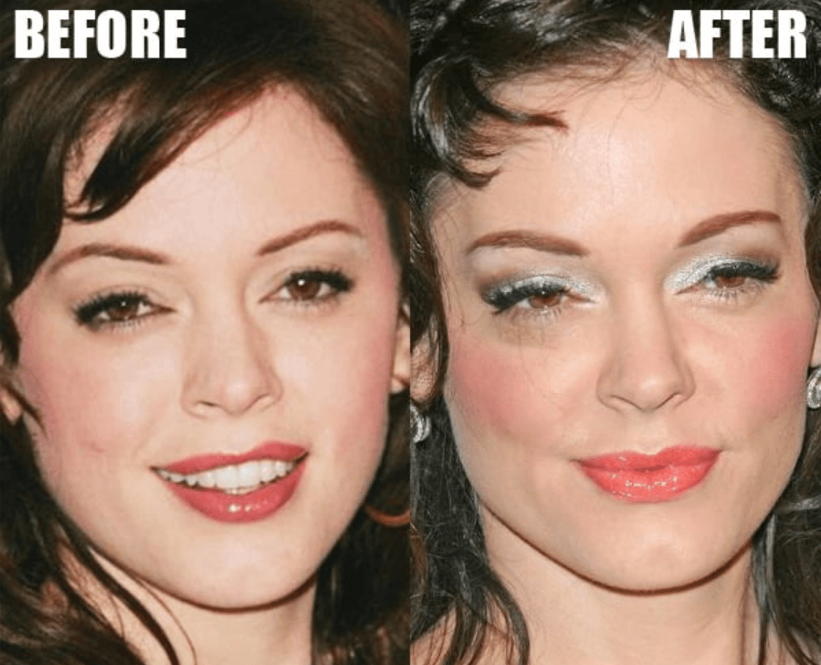 Rose McGowan Plastic Surgery Before and After - The Truth