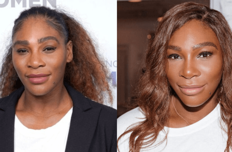 Serena Williams Caught Up in the Rumours of Plastic Surgery