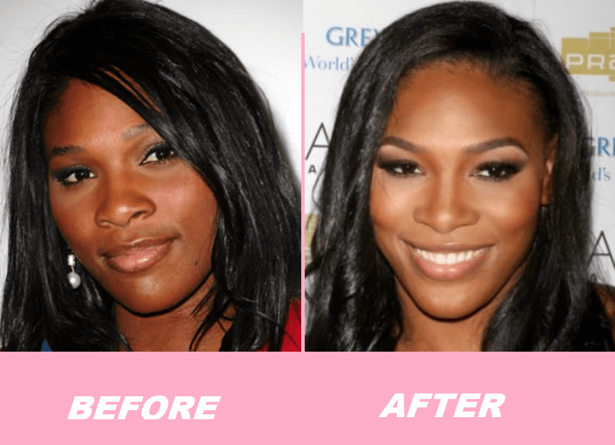 Serena Williams Plastic Surgery Before and After - The Truth