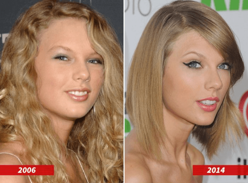 Taylor Swift Before and After Plastic Surgery