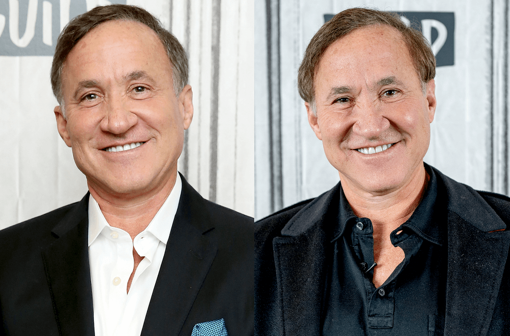 Terry Dubrow Plastic Surgery Rumor: Filler Before and After