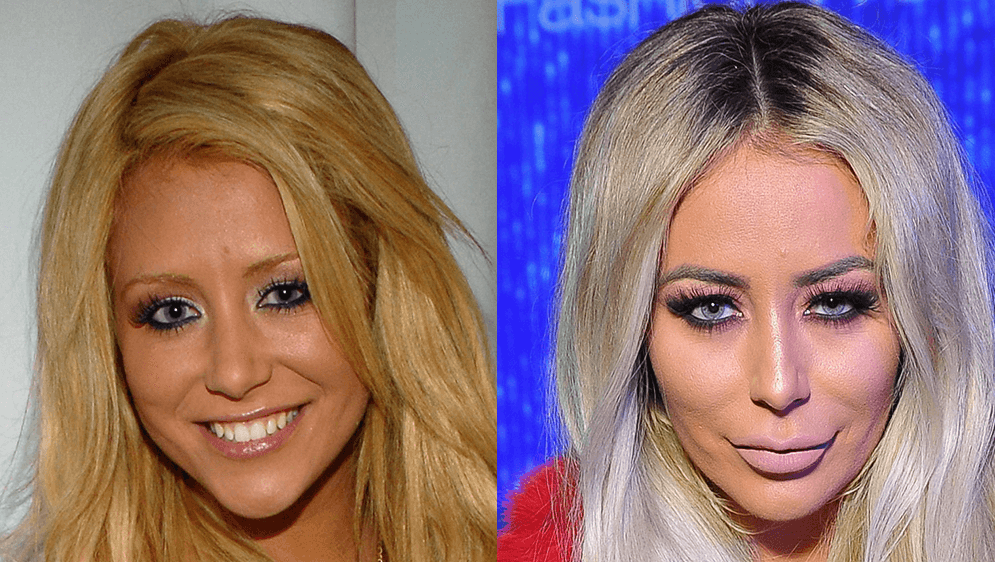 The speculations of Aubrey O'Day face surgery