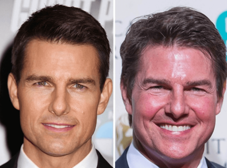 Tom Cruise Face Surgery Speculations