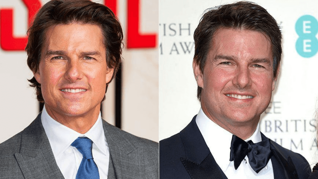Tom Cruise Plastic Surgery Before and After - The Truth