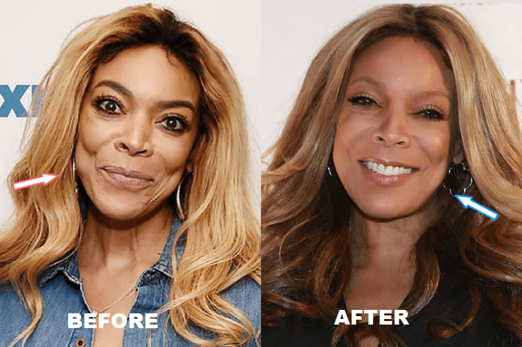 Wendy Williams Plastic Surgery Before and After - The Truth