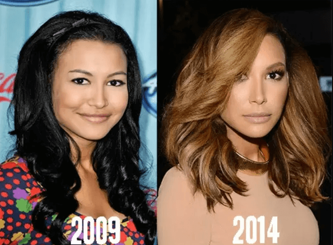 Were Naya Rivera's Transformations showing Examples of Plastic Surgery Fails