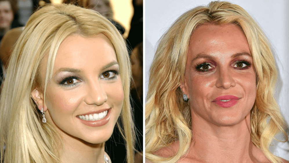 What Plastic Surgery Britney Spears Have