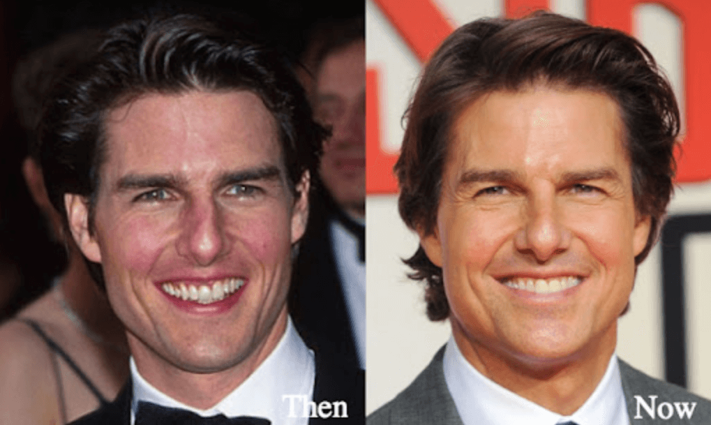 What Plastic Surgery Tom Cruise Have
