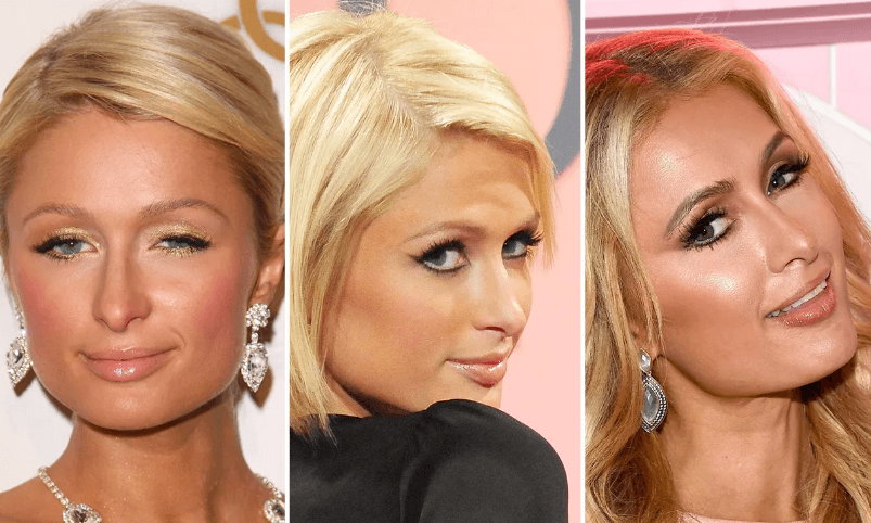 What are some of the Procedures paris hilton has had