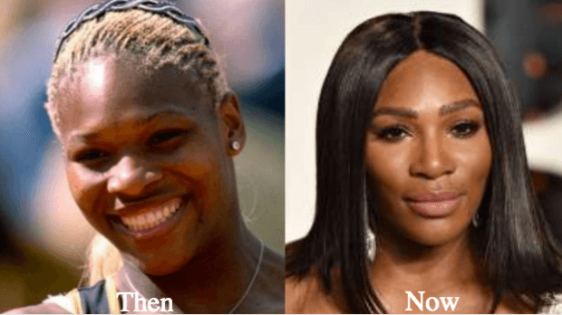 What do the Before and After photographs of Serena Williams indicate