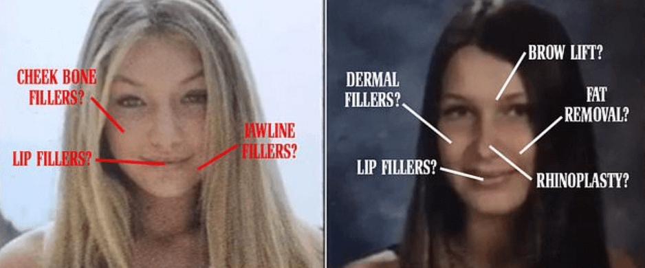 What is plastic surgery and how does it work On Gigi Hadid