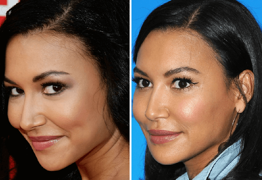 What is the Distinctive Finding in the Before and After Image of Naya Rivera