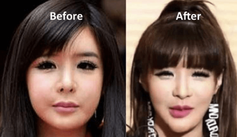 What is the cost of Park Bom's plastic surgery treatments