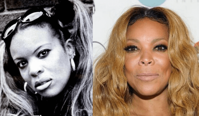 What plastic surgeries have had Wendy Williams