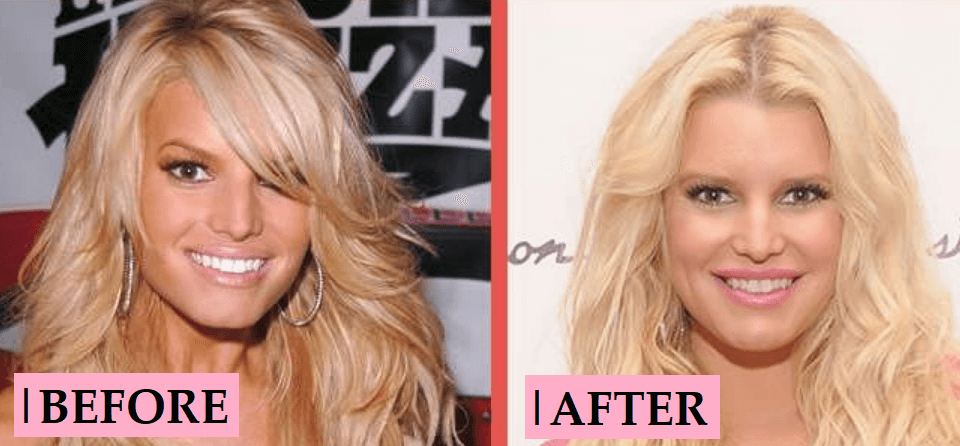 Jessica Simpson Plastic Surgery: Tummy Tuck Before After
