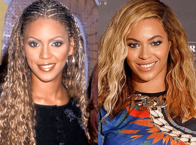 Beyonce Botox and Filler Speculation