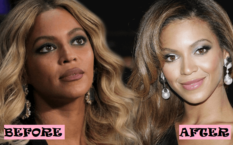 Beyonce Plastic Surgery Rumor: Before and After Photo