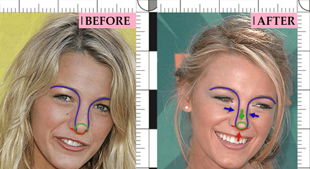 Blake Lively Plastic Surgery: Transformation Before and After