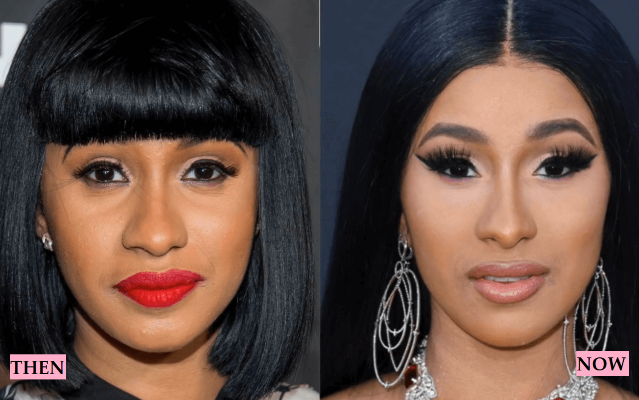 Cardi B Plastic Surgery: Transformation Before and After