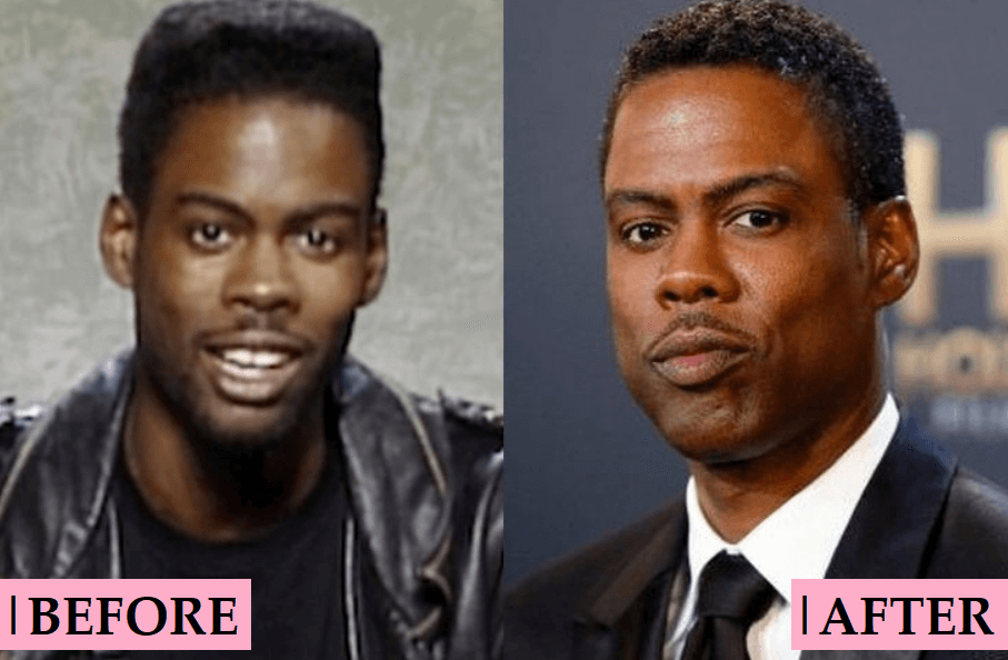 Chris Rock Before and After
