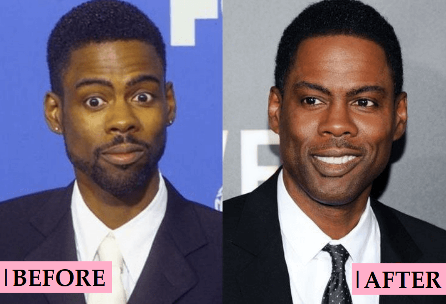 Chris Rock Plastic Surgery: Before and After Transformation