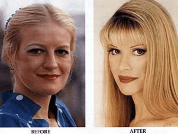 Cindy Botox Before After