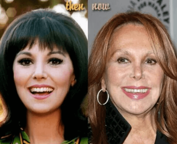 Does Marlo Thomas have a history with Botox