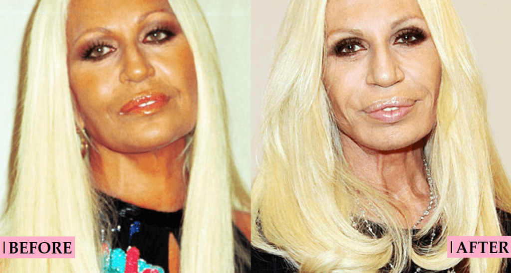 Donatella Versace Cosmetic Surgery - What You Need To Know