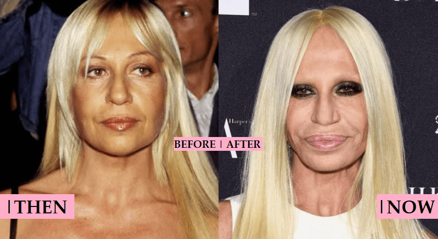 Donatella Versace Plastic Surgery Rumor: Before and After