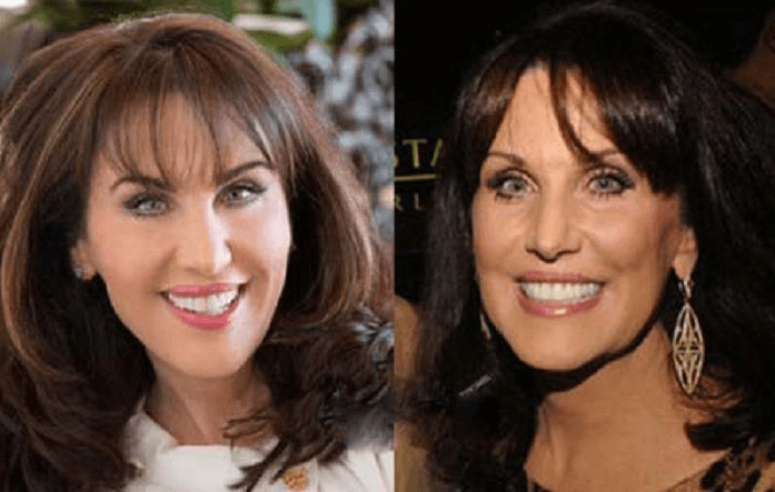 Dr. Phil Wife Filler and Botox