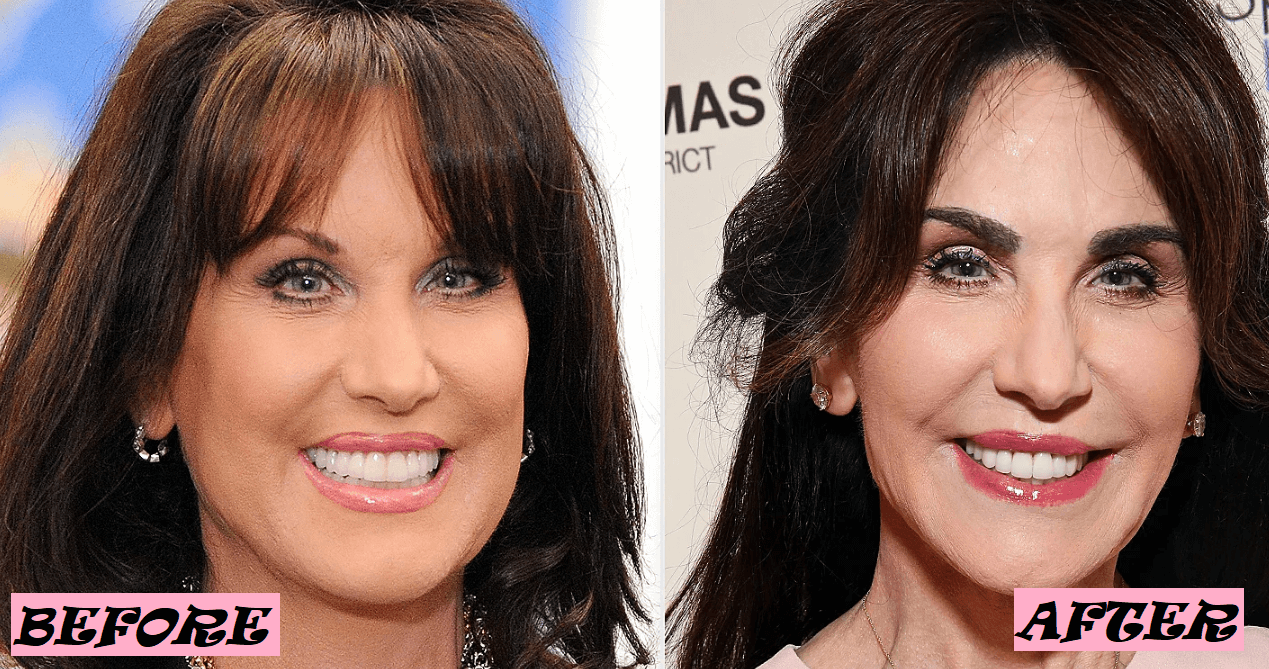 Dr. Phil Wife Plastic Surgery