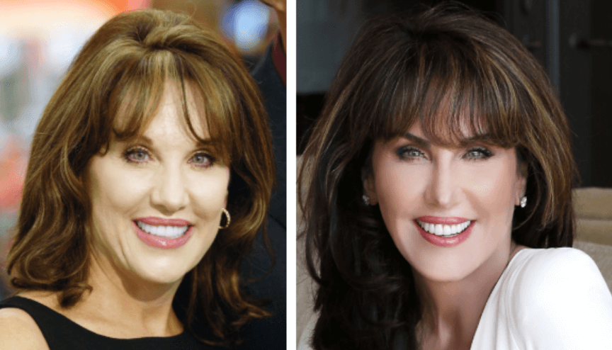 Dr. Phil Wife Robin McGraw Before After