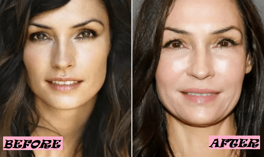 Famke Janssen Plastic Surgery Rumor: Before and After