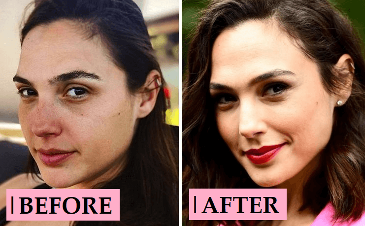 Gal Gadot Plastic Surgery Rumor: Before and After Photo