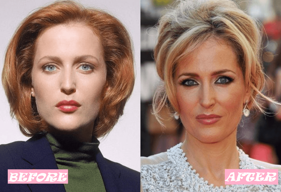 Gillian Anderson Before and After Transformation