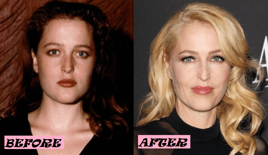 Gillian Anderson Plastic Surgery: Before and After Photo