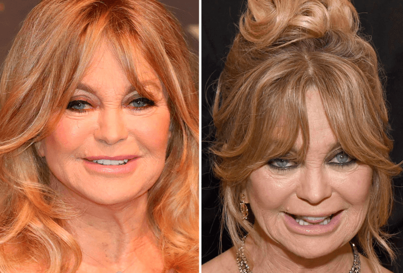 Goldie Hawn Before and After Pictures