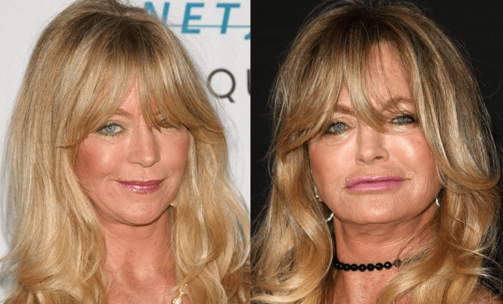 Goldie Hawn Facelift and Botox