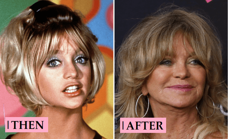 Goldie Hawn Plastic Surgery: Transformation Before and After