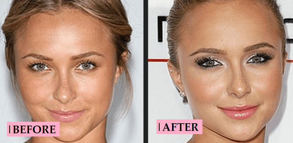 Hayden Panettiere Plastic Surgery Rumor: Before and After Photo